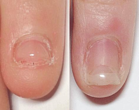 深爪・噛み爪・爪が薄くても・長持ちパーフェクトフィルインのジェルネイル一層ベース残しは6週間持つ  一層 を 残した 爪切りで切れるジェルネイル